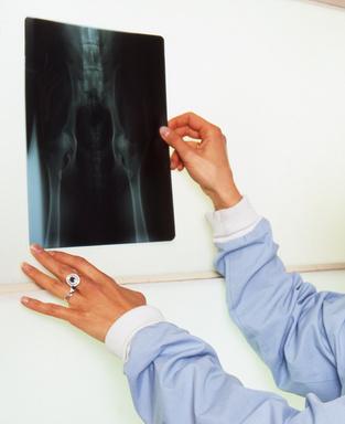 radiographie  de la hanche sur un chien- dysplasie